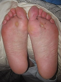 warts on feet