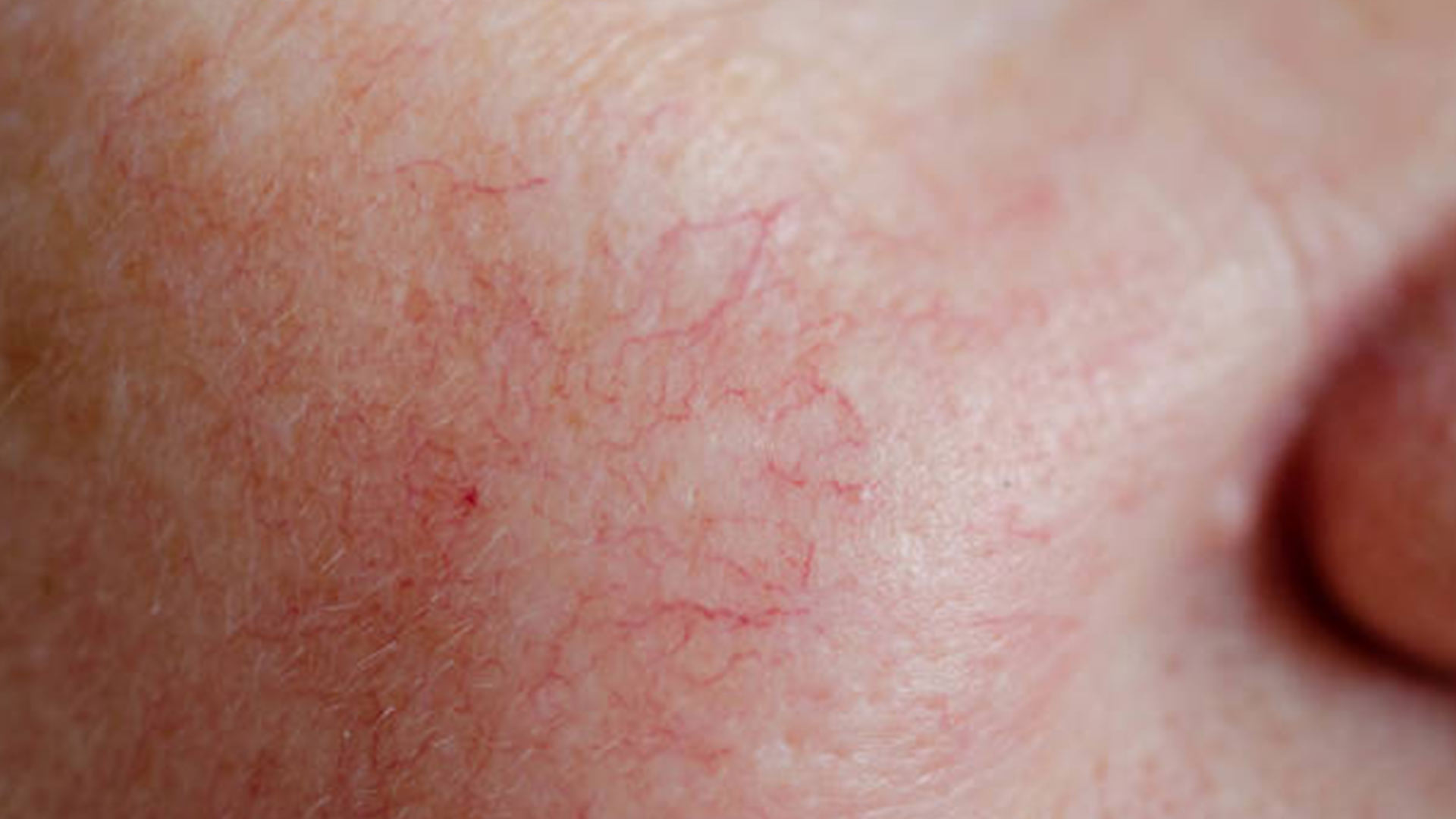 Eliminate Capillaries and Visible Veins