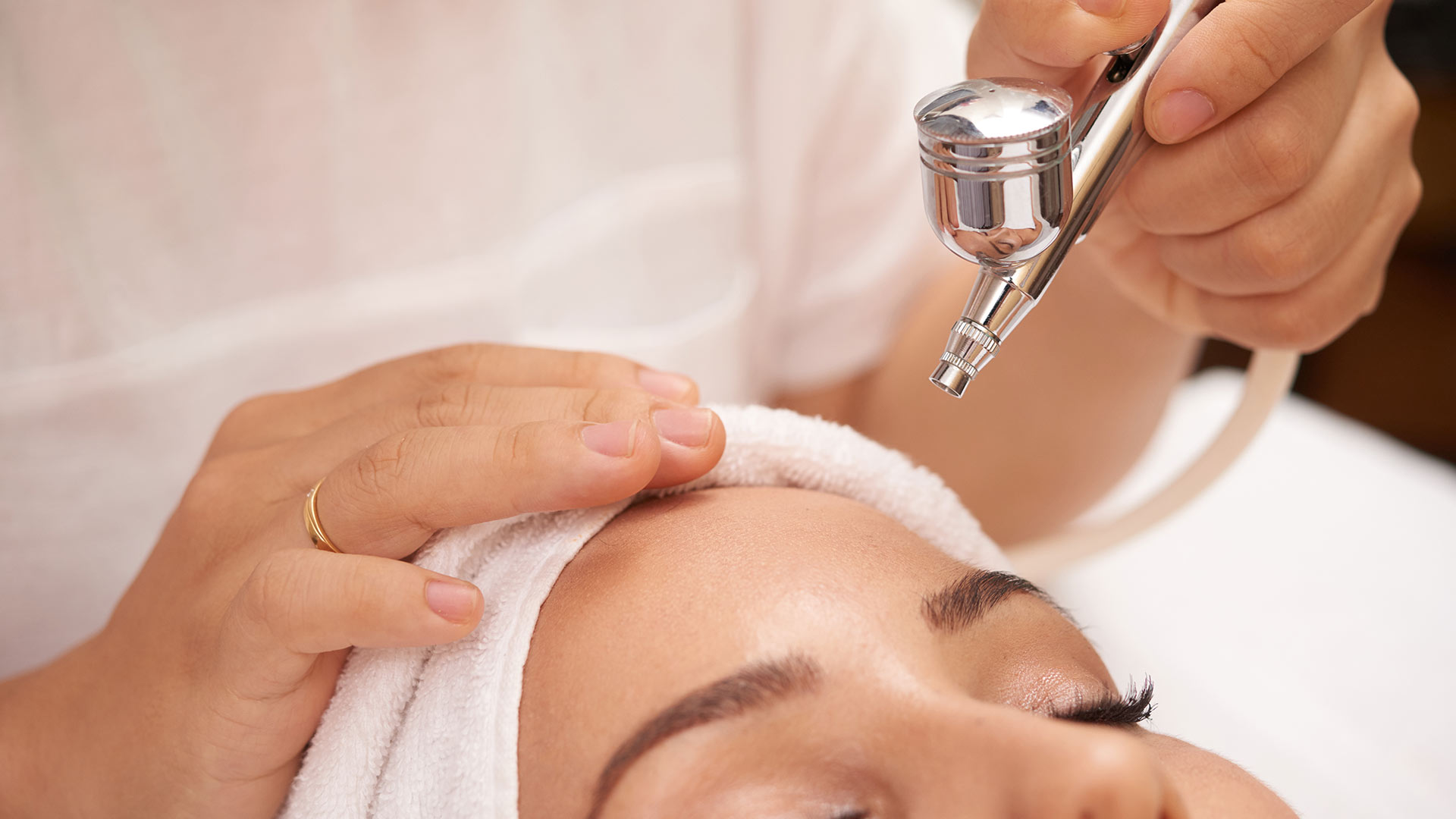Photofacial- Photorejuvenation Therapy