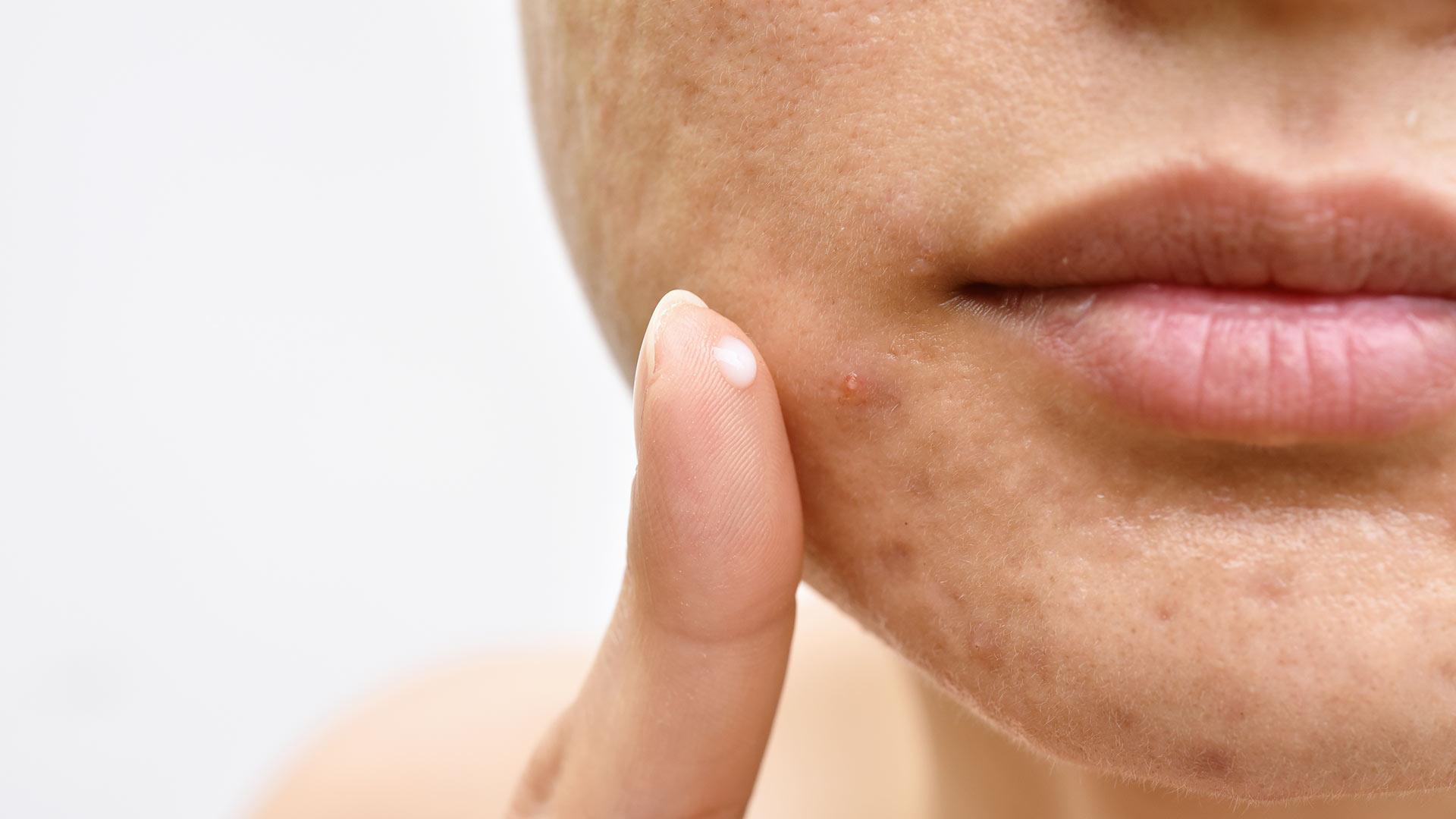 Control Stubborn Acne