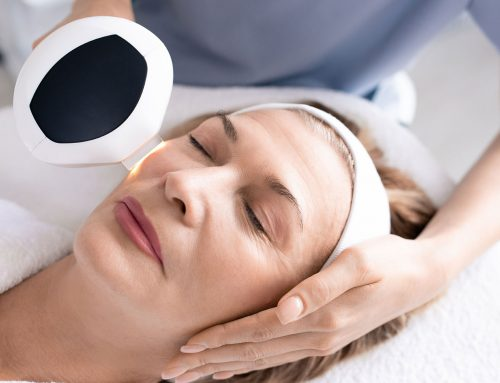 8 Reasons to Consider IPL Photofacial Treatment