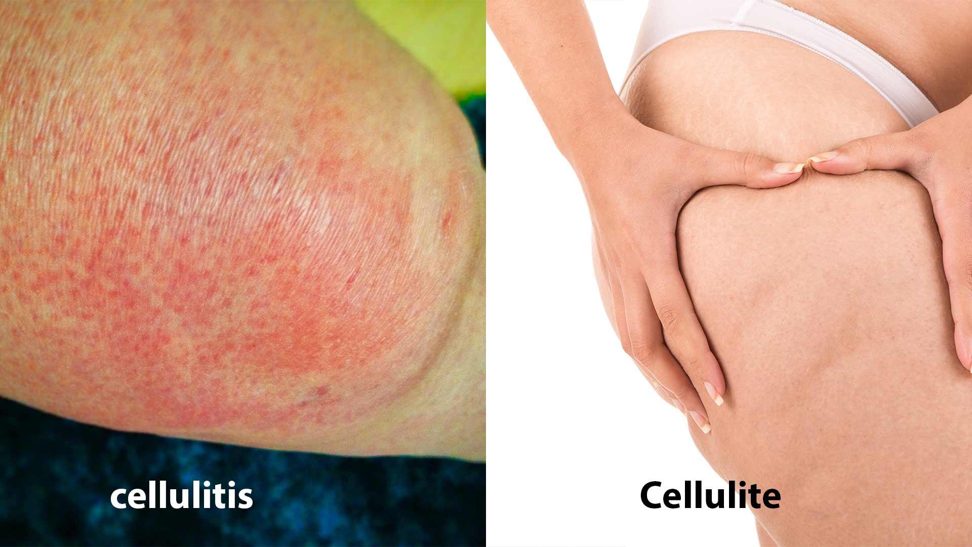 Cellulitis and Cellulite