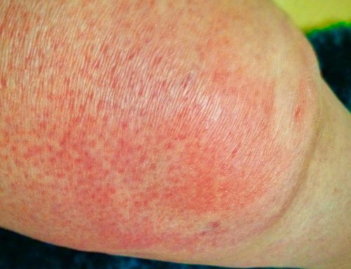 Cellulitis – 6 Fast Facts That You Should Know
